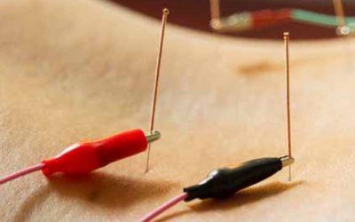 Ηλεκτροβελονισμός: Μπορεί να βελτιώσει τη ρύθμιση του σακχάρου στο αίμα σε υπέρβαρες και παχύσαρκες γυναίκες