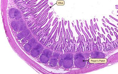 Μη μετουσιωμένο κολλαγόνο UC-II: Απευαισθητοποίηση του ανοσοποιητικού συστήματος στις πλάκες Peyer του εντέρου